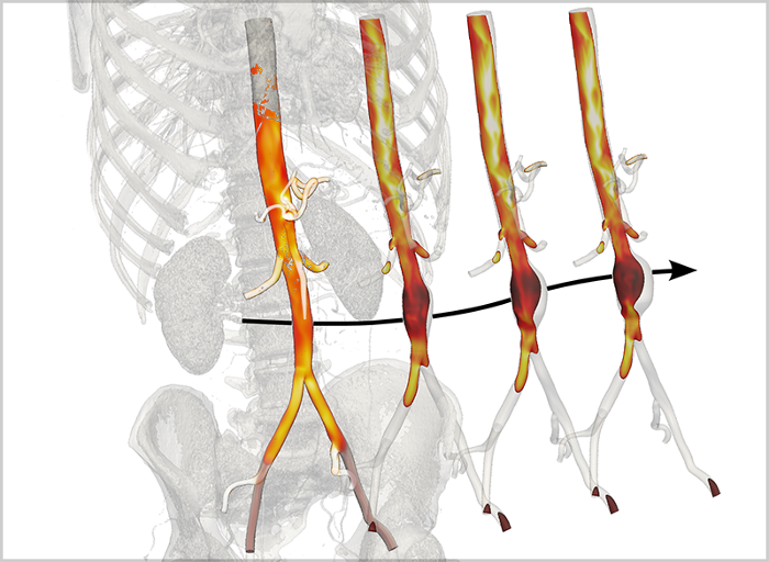 Abdominal aortic aneurysm (AAA) afflicts tens of thousands of men every year. A Yale team ran their code on TACC's most powerful supercomputer, Stampede, and used its visualization nodes to create realistic depictions of AAAs. Courtesy TACC.