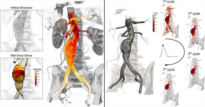 <strong> Computer simulation of hemodynamics. </strong> In the left image, brighter colors are assigned to blood borne particles with a high shear history. This information helps researchers investigate why thrombus forms in aneurysms. In the image on the right, a high resolution mesh whose nodal coordinates are used as initial locations for particle injections. Snapshots are taken at peak systole and particles are colored based on velocity magnitude values. Courtesy TACC.