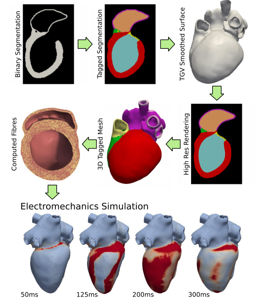 The team of Gernot Plank at the Medical University of Graz is working on the development, application, and validation of a modelling methodology for performing patient-specific in-silico simulations of ventricular electromechanics. Such simulations provide deformation data, which become usable as boundary conditions for fluid-flow simulation in other modelling activities within CARDIOPROOF. This model development targets both cardiac anatomy and physiology, with sufficient detail to facilitate a direct clinical interpretation of computed simulation results. Besides serving as input for CFD simulations, physiologically important parameters such as regional distribution of strains, stresses, myocardial work, and energy consumption are also computed.