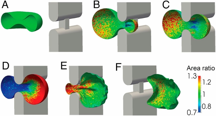 <strong> Tight fit. </strong> A simulation of a sequence of six steps as a red blood cell passes through a slit in the human spleen. Only one-half of the cell is shown for clarity and visualization. Courtesy Suresh, Pivkin, et al.