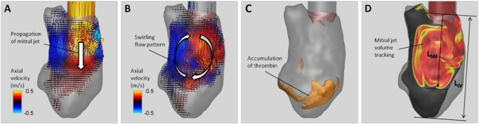 <strong>Going the distance.</strong> Computational fluid dynamics results show that the distance of the mitral jet into the left ventricle correlates well with left ventricle blood clot risk. Courtesy Rajat Mittal, Jung Hee Seo and Thura Harfi.