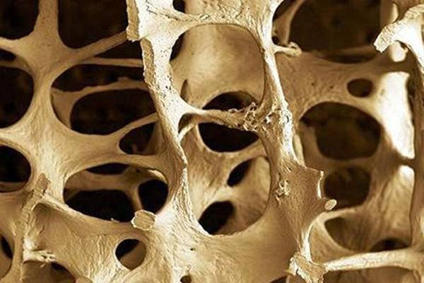 <strong>Brittle bones.</strong> Bone loss from diseases like osteoporosis could soon be repaired thanks to new research identifying genes that contribute to bone formation. Courtesy German Tenorio <a href='https://creativecommons.org/licenses/by-sa/2.0/'>(CC BY-SA 2.0)</a>.