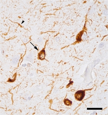 <strong>The lumps in this image</strong> indicated by the arrows are abnormal accumulations of tau proteins in the brain of someone with Alzheimer's disease.